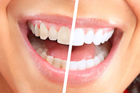 cosmetic dentistry in surrey