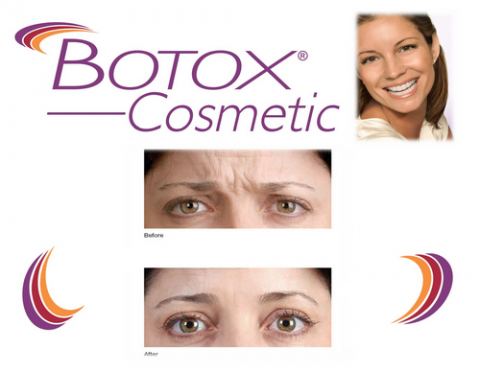 Botox Surrey BC